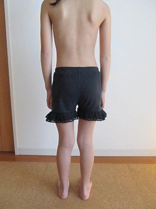 脊柱側彎症